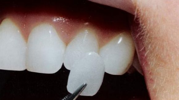 Problemi estetici ai denti? Esistono soluzioni piuttosto veloci
