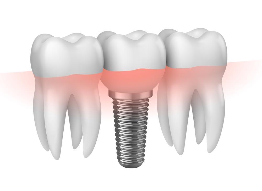 implantologia_roma
