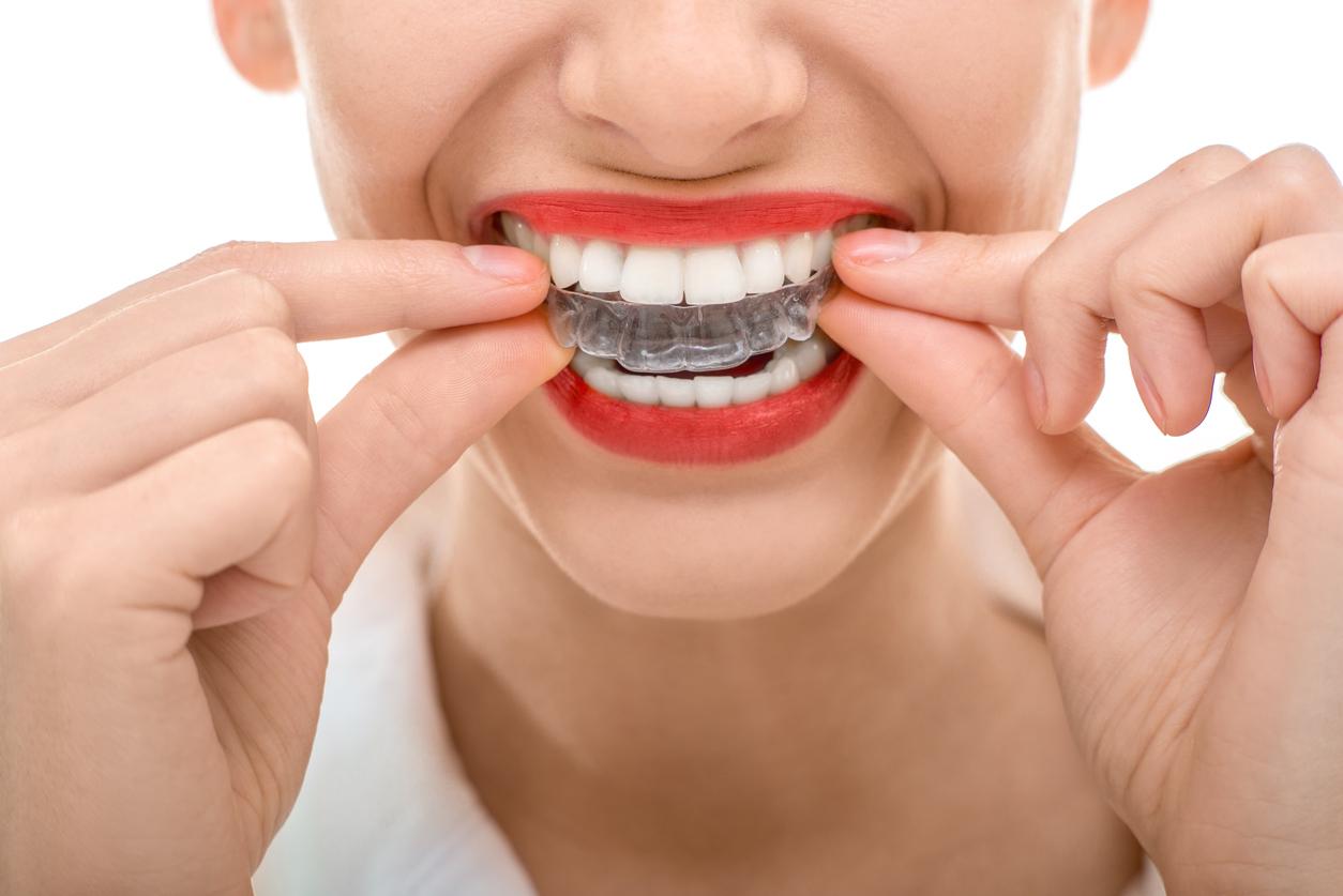 ortodonzia invisibile invisaling