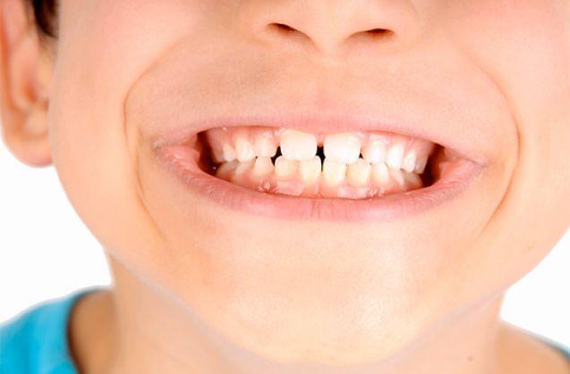 Denti da latte: le regole dei dentisti per proteggere il sorriso dei più piccoli