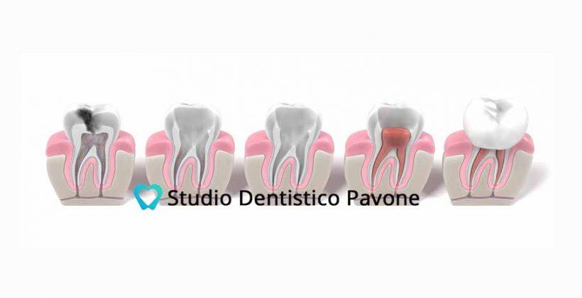 Endodonzia, dalla pulpite alla cura: il dente si ammala anche dal di dentro
