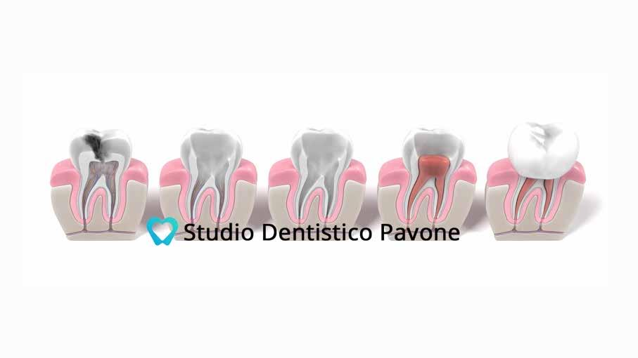 Studio Denstistico pavone pulpite endodonzia