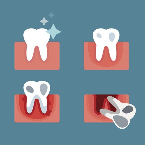 Cosa è la parodontite e le cause