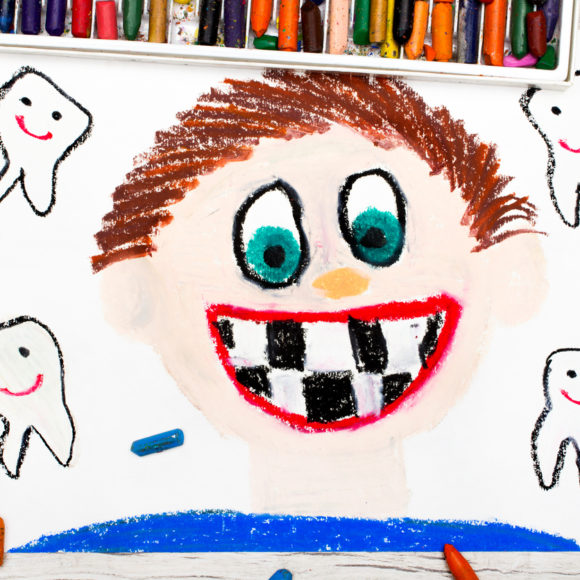 La cura della carie dei denti da latte