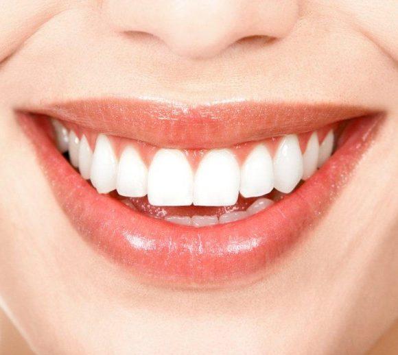 Lo sbiancamento dei denti vitali